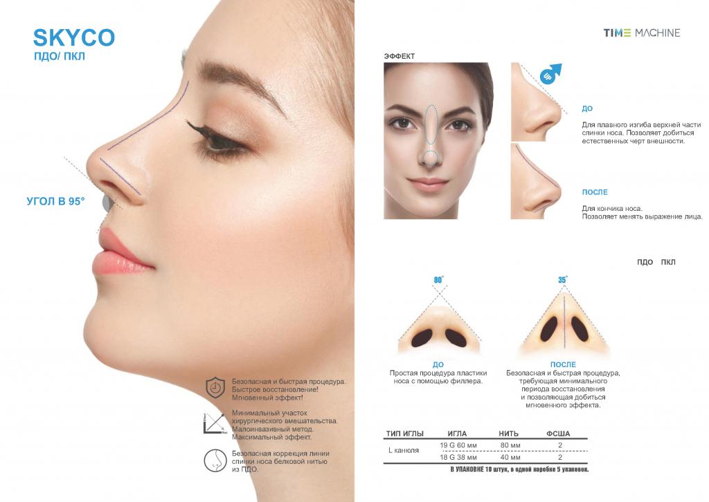Как проходит коррекция углов нижней челюсти филлерами?