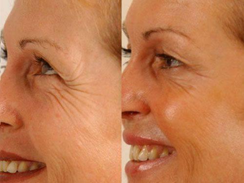 Термаж лица – отзывы косметологов о процедуре thermage