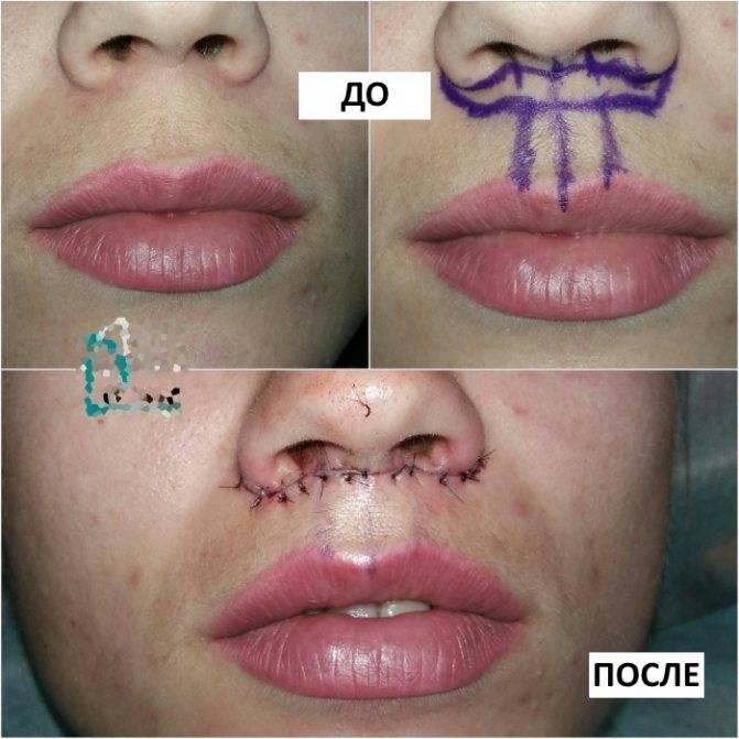 Становимся еще красивее: как поднять уголки губ филлерами?