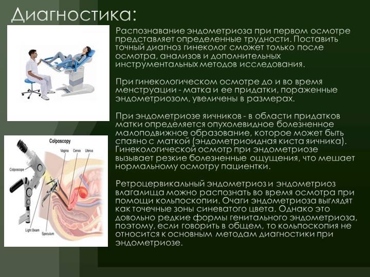 Лечение эндометриоза с помощью настоек, тампонов и других народных средств
