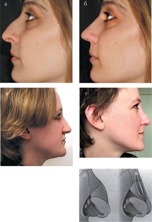 Закрытая репозиция перелома костей носа
