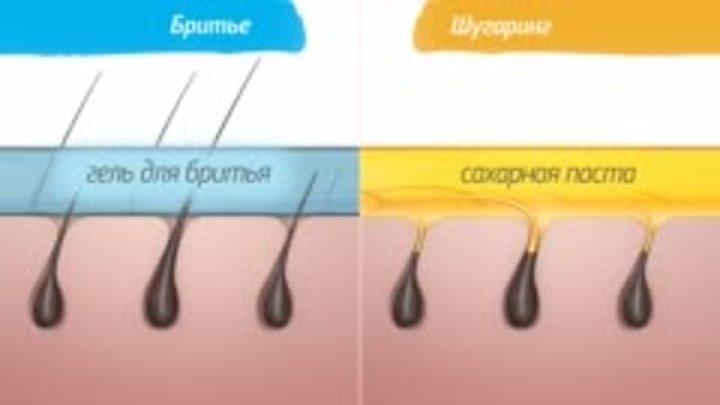 Как готовиться к лазерной эпиляции глубокого бикини