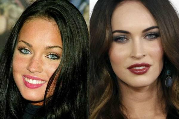 Звезды, увеличившие губы: 100 фото знаменитостей до и после коррекции губ