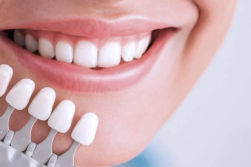 Пломба вместо коронки или полная реставрация зуба