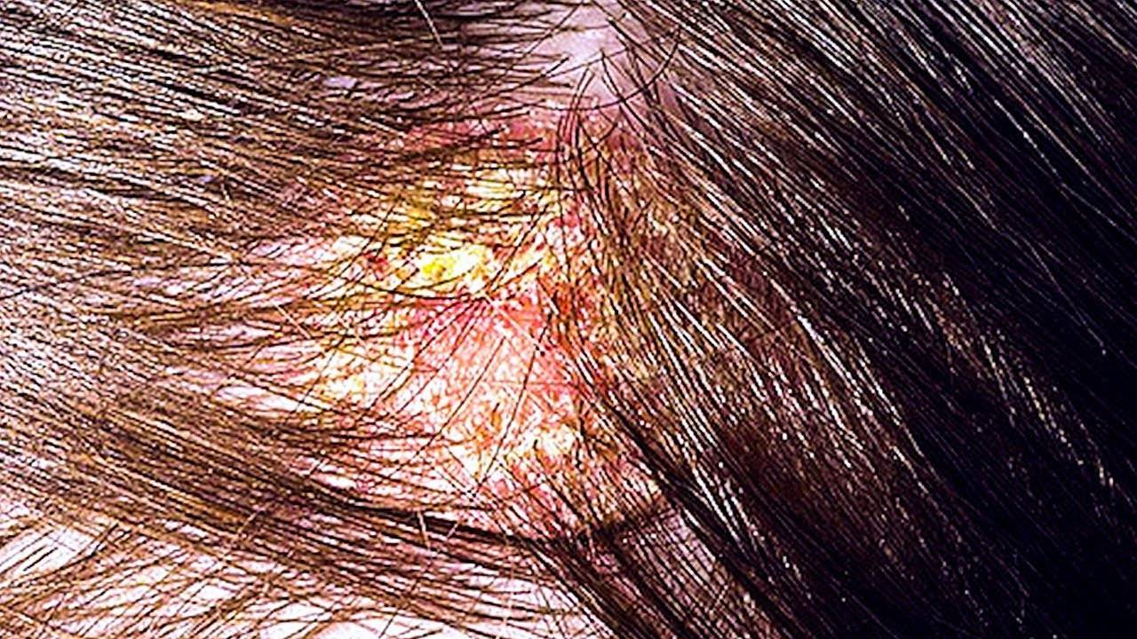 Смешанная себорея: особенности заболевания и основные методы лечения