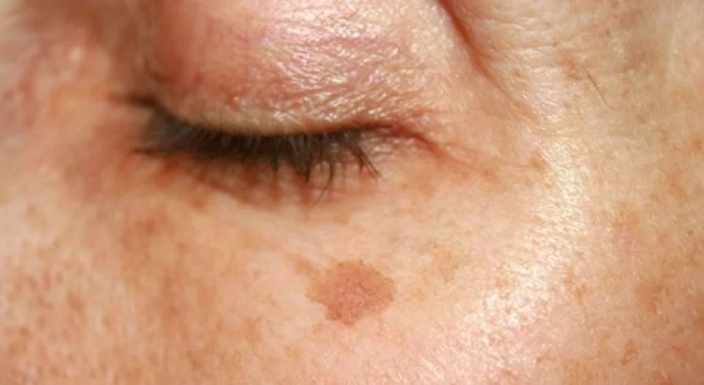 Убираем пигментные пятна на лице после родов. пигментные пятна после родов на лице и теле: причины появления, способы устранения, профилактика