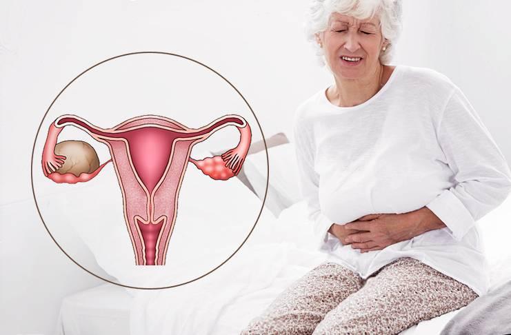 Противопоказания при миоме матки малых, средних и больших размеров