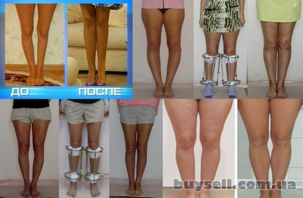 Исправление кривизны ног хирургическим путем