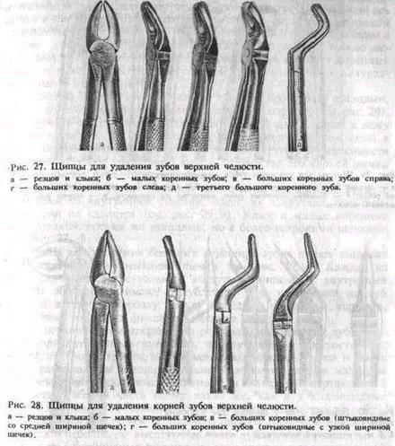 Элеваторы для удаления зубов: виды, описание, методика, осложнения