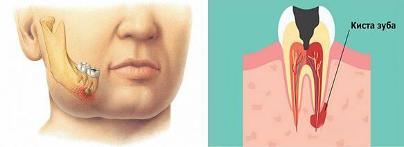 Симптомы и методы лечения кисты зуба