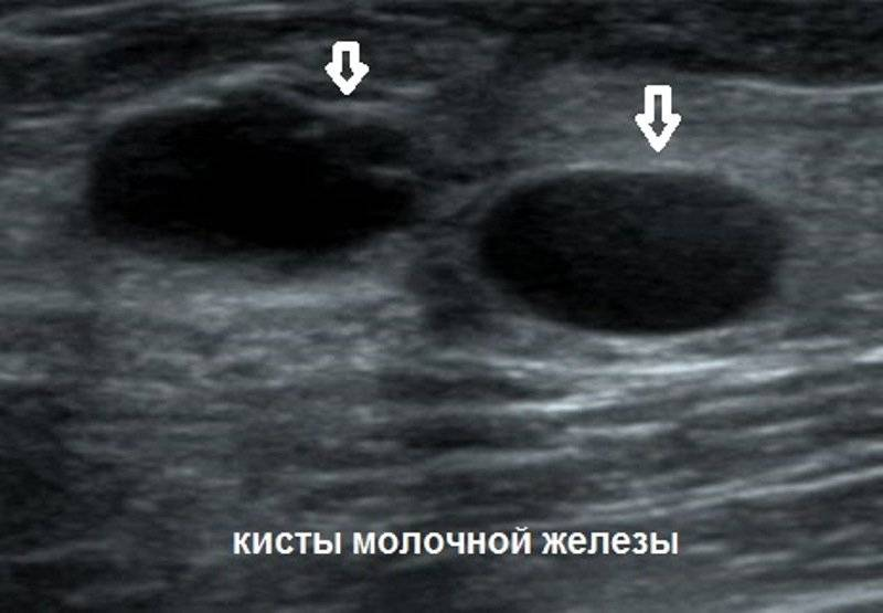 На какой день делать узи молочных желез при мастопатии: когда лучше, расшифровка
