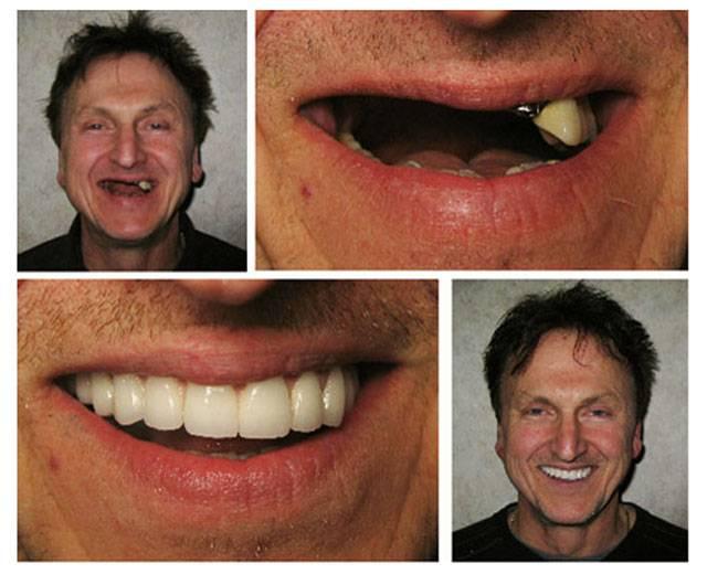Методы устранения десневой улыбки