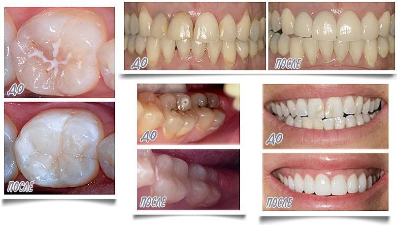 Особенности реминерализации зубов у стоматолога и в домашних условиях: гели, пасты и капы для эмали