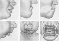 Этиология и патогенез приобретенных и врожденных зубочелюстных аномалий