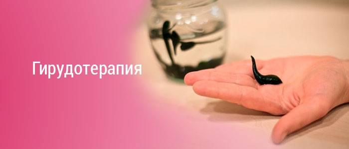Лечение пиявками показания и противопоказания, гирудотерапия при варикозе
