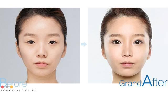 Как делают операцию по увеличению разреза глаз?