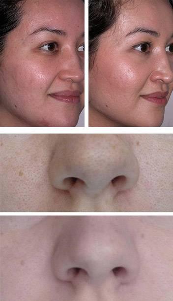 Ультразвуковая чистка кожи лица — что это такое, преимущества методики и мнения опрбовавших
