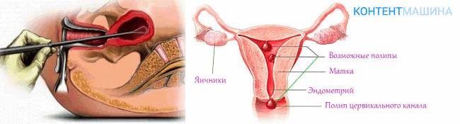 Коричневые выделения при беременности на ранних сроках без болей, с болью. причины