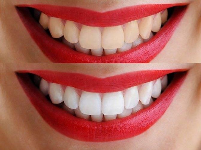 Методы безвредного отбеливания зубов в стоматологии