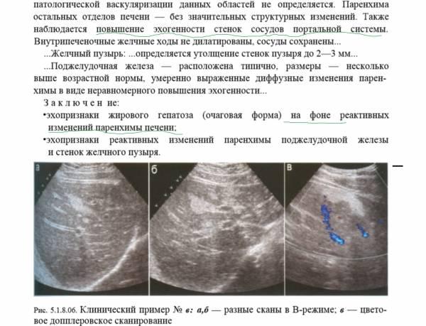 Что такое диффузно неоднородная структура поджелудочной железы