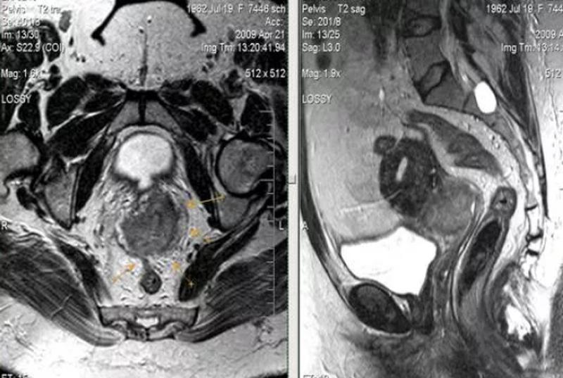 Мрт органов малого таза с контрастированием
