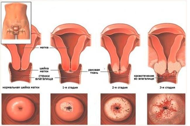 Симптомы рака матки и шейки матки