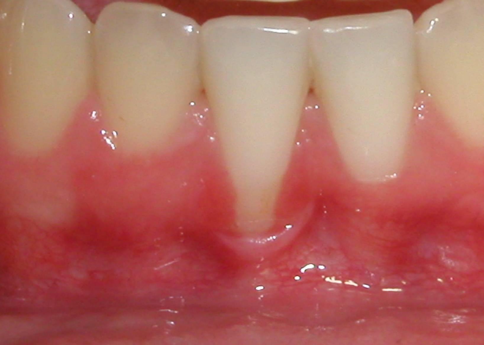 Повышенная чувствительность зубов – причины и лечение