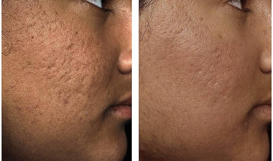 Атрофические рубцы на лице и теле: способы лечения и удаления
