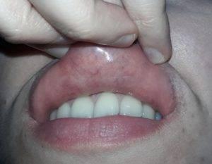 Болячка на слизистой с внутренней стороны губы в виде белой язвочки или пятна, но не герпес: как лечить гнойник?