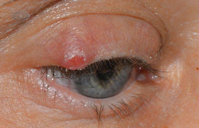 Заболевания век – болячки и воспаления под глазами: как называются