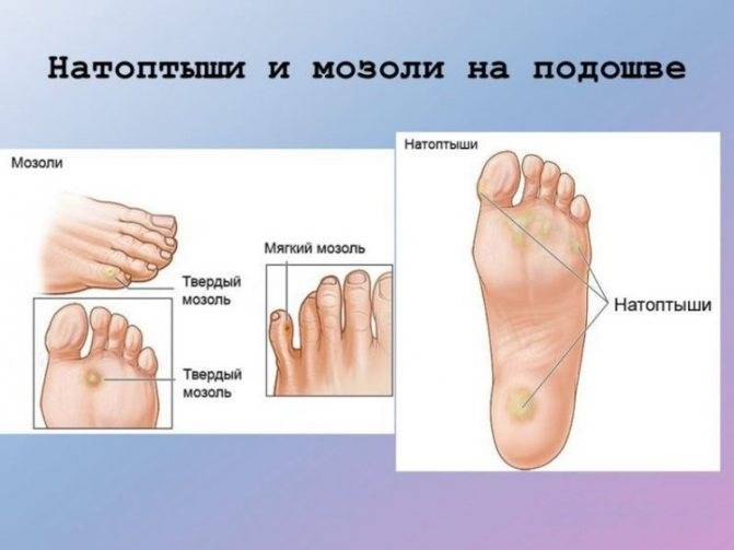 Грибок на ноге в виде мозоли