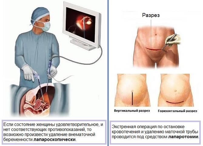 Можно ли забеременеть хроническом воспалении. беременность и воспаление яичников