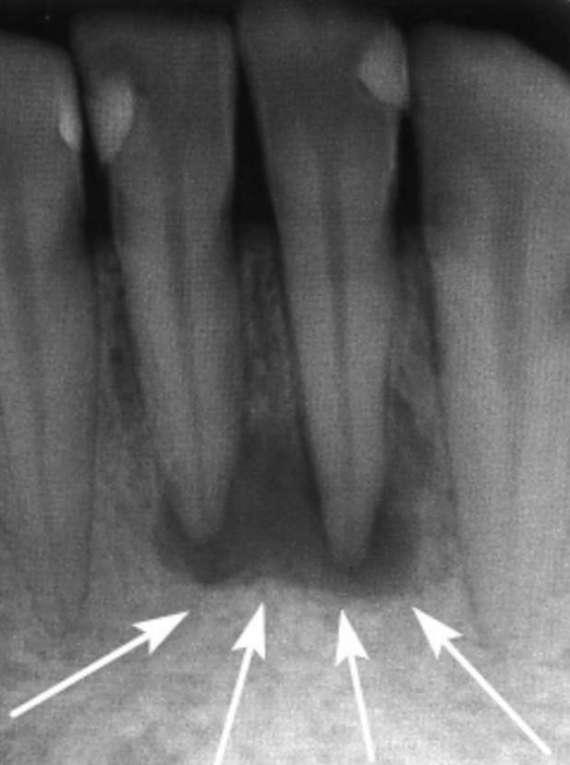 Фолликулярная киста челюсти