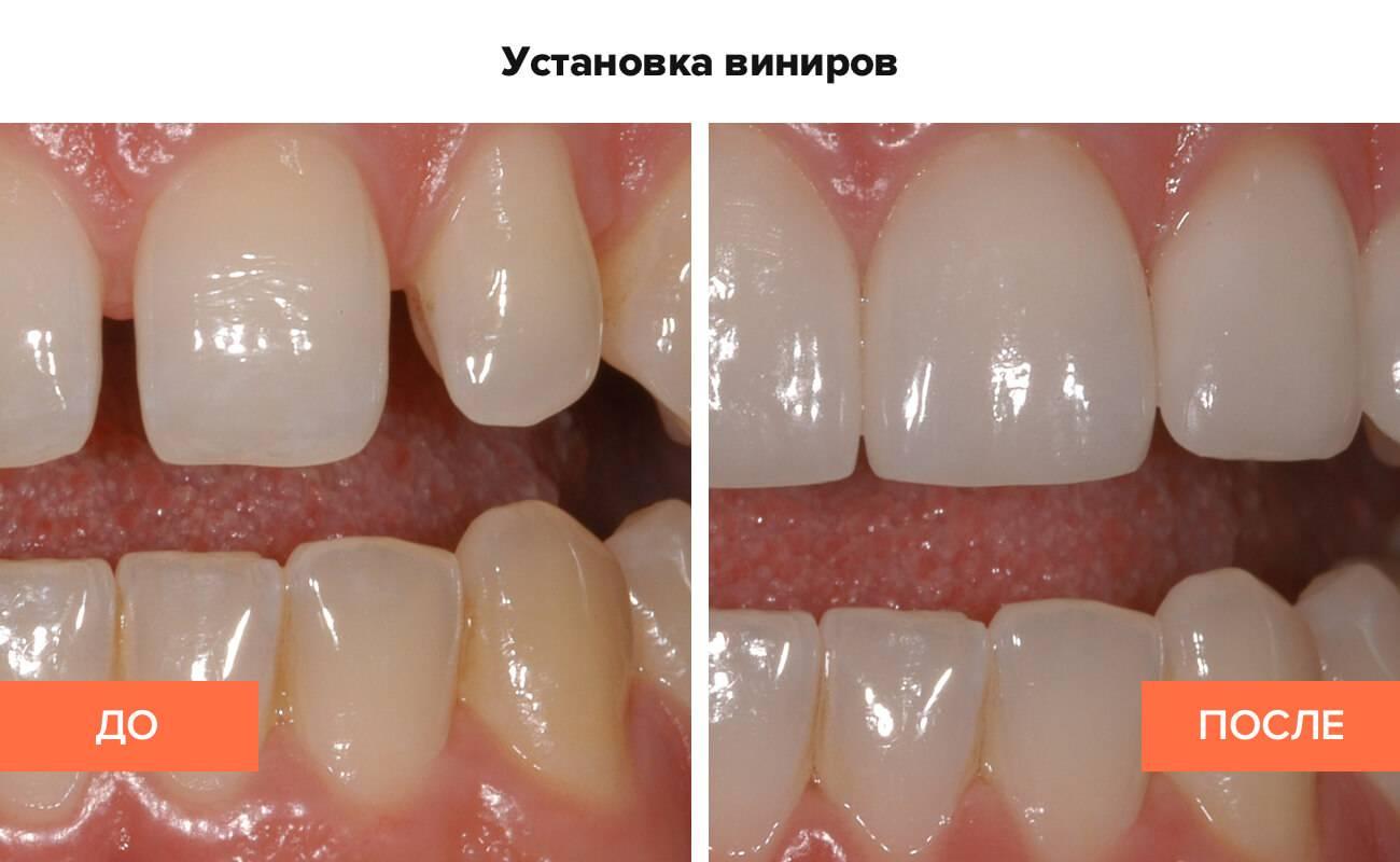 Как наращивают передние зубы – методики и пошаговое описание процесса