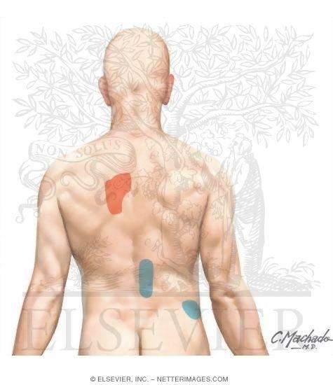 Сколько заживает грудина после операции на сердце