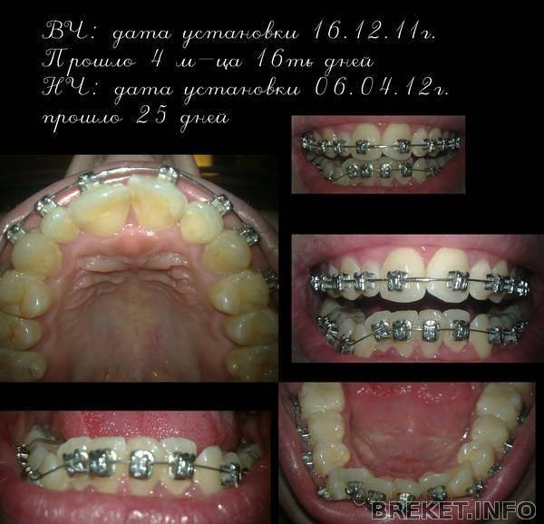 Хочется исправить прикус? стоит узнать, сколько болят зубы после установки брекетов