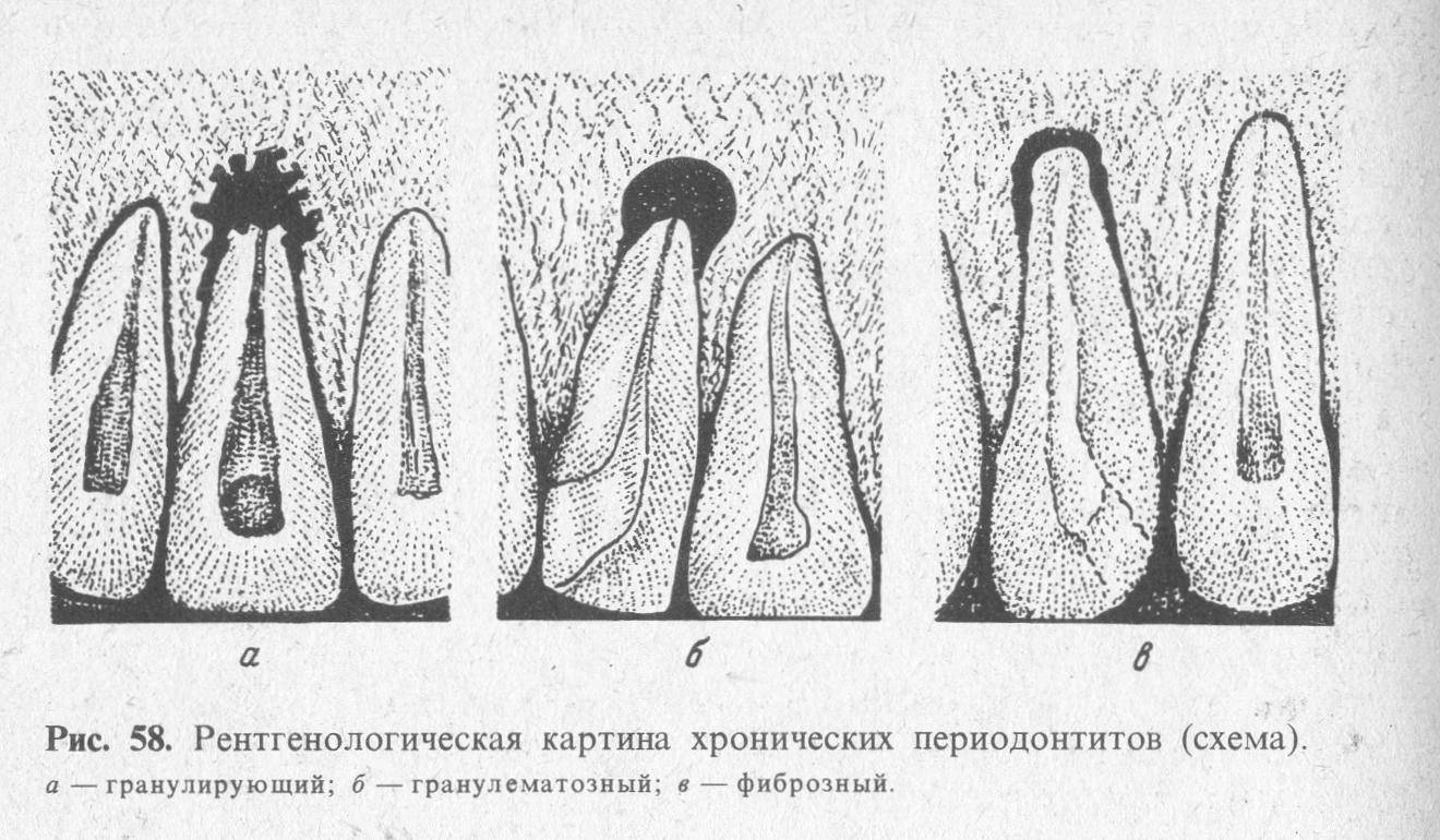 В чем опасность хронического фиброзного пульпита и как его лечить?