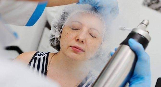 Чего больше: пользы или вреда от криомассажа лица жидким азотом