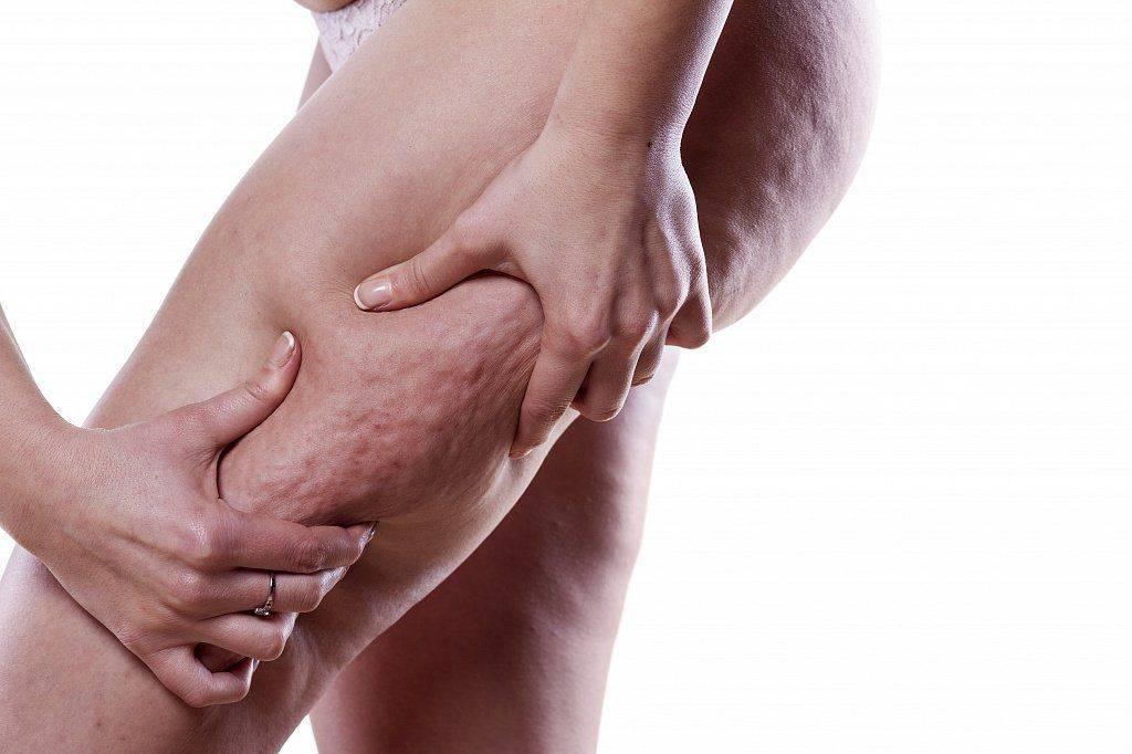 Почему у мужчин возникает целлюлит, диагностика и способы лечения