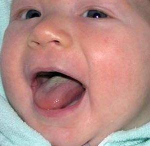 Белый налет во рту у ребенка