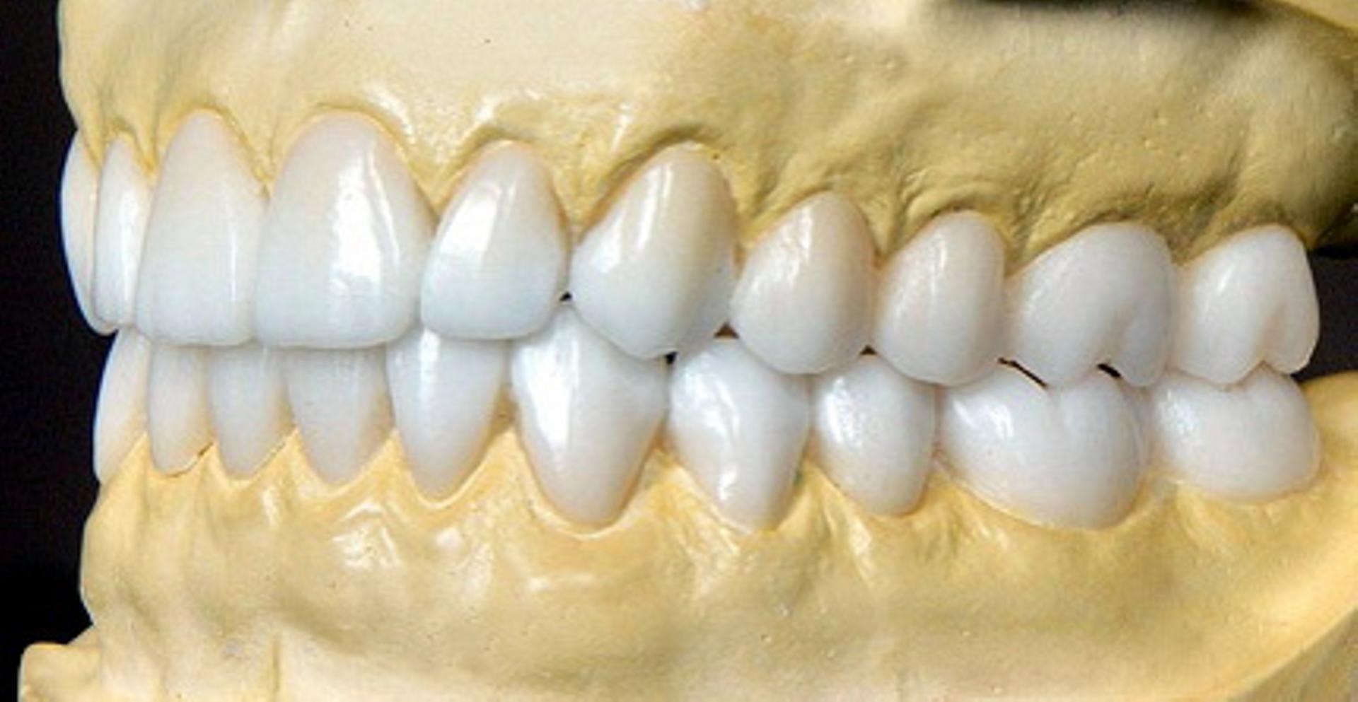 Техника восстановления зубов с помощью восковой моделировки в стоматологии