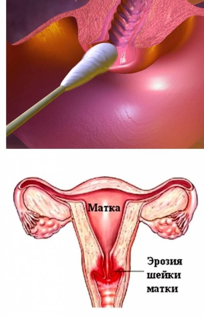 Как влияет на зачатие этот недуг и можно ли забеременеть при эрозии шейки матки?