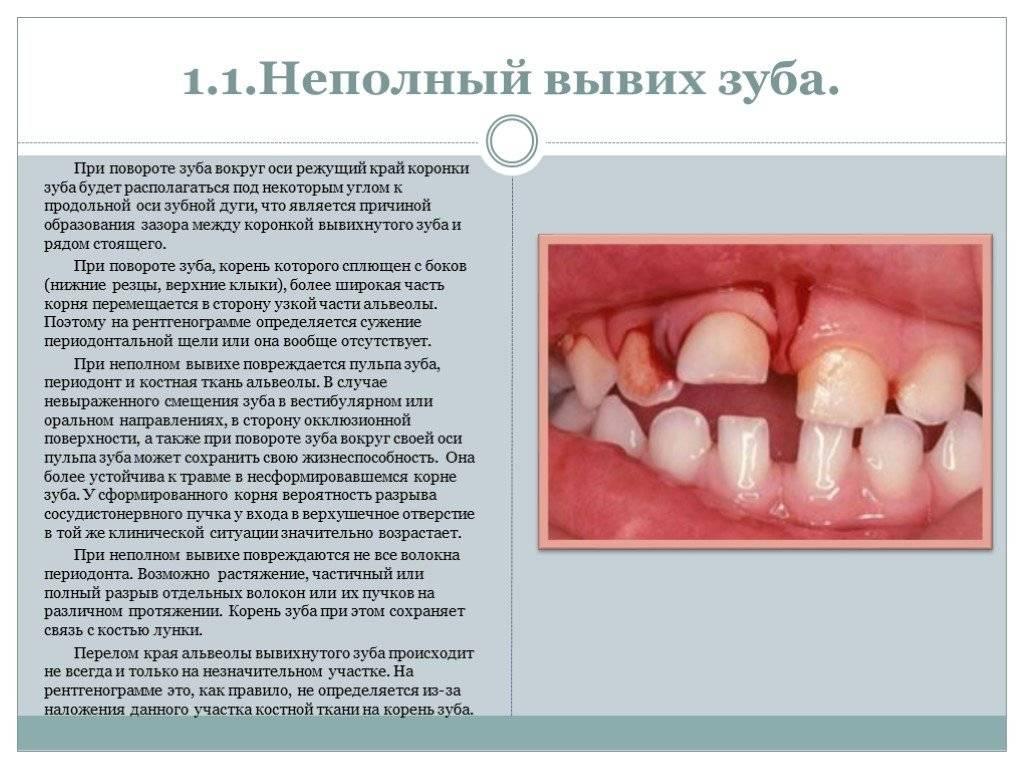 Травма зуба: симптомы и лечение
