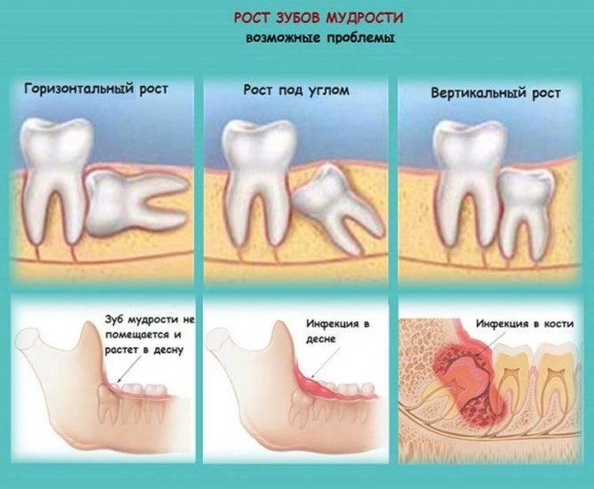 Сколько может болеть рана после сложного удаления зуба