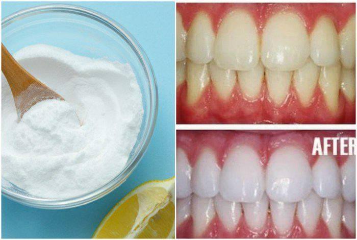 Можно ли чистить зубы пищевой содой