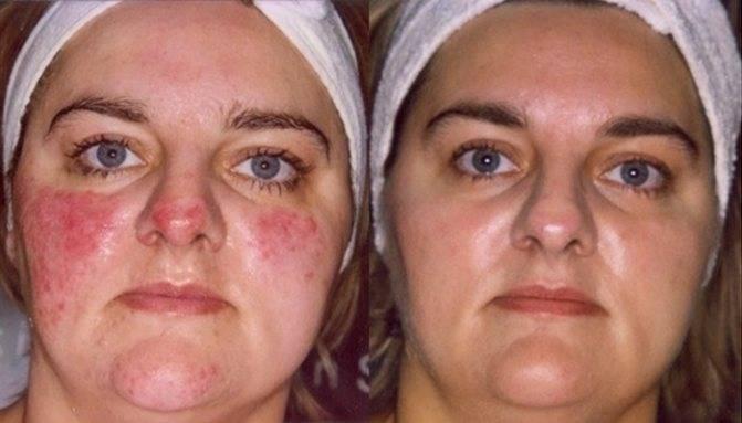 Рецепты масок от купероза на лице