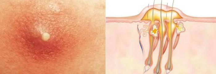Язвочки на половых губах: фото, причины, лечение