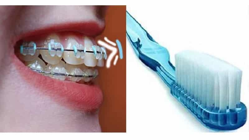 Виды электрических зубных щеток – советы, как правильно выбрать щетку