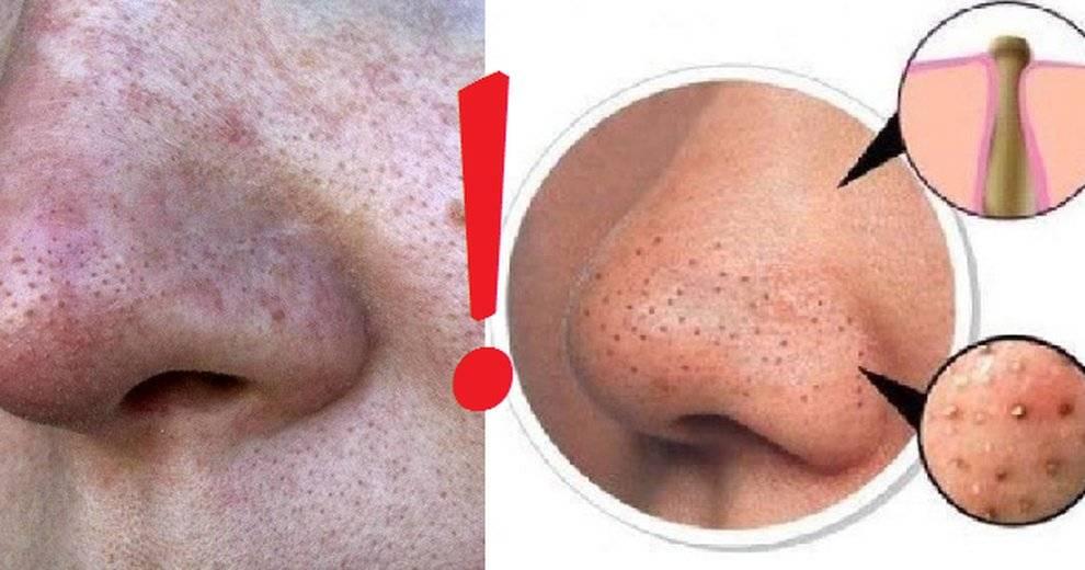 Что делать, если забиты поры на лице: их эффективная и качественная очистка!