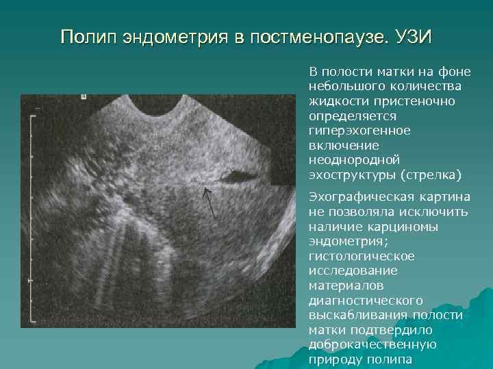 Серозометра матки в менопаузе и постменопаузе – симптомы и лечение